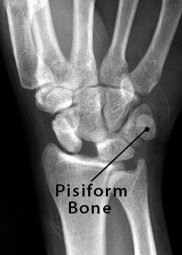 Pisiform Bone Definition  Location  Anatomy  Functions