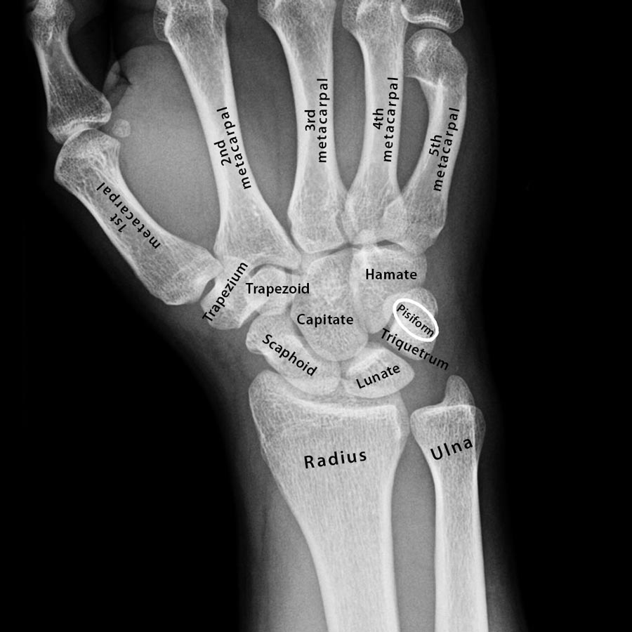 Carpal Bones Definition Location Anatomy Diagram The Skeletal