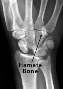 Hamate Bone X Ray X